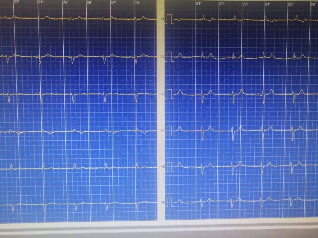 Ηλεκτροκαρδιογράφημα 1