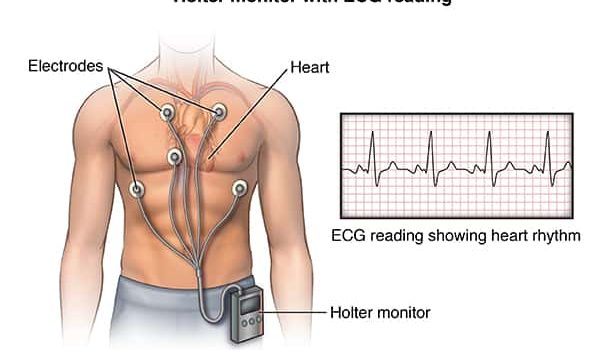 Anterior view male figure torso with holter monitor and ekg/heart rhythm inset; ACardio_20140402_v0_005SOURCE: cardio_holter-monitor_proc_1_layers.psd