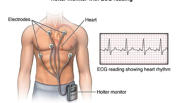Anterior view male figure torso with holter monitor and ekg/heart rhythm inset; ACardio_20140402_v0_005  SOURCE: cardio_holter-monitor_proc_1_layers.psd